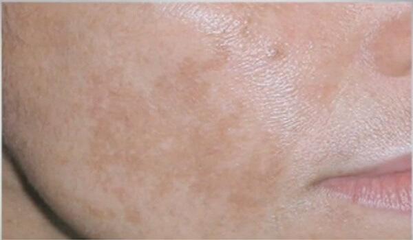 Regal крем омолаживающий против пигментных пятен