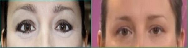 как нанести макияж чтоб не было видно мешков под глазами